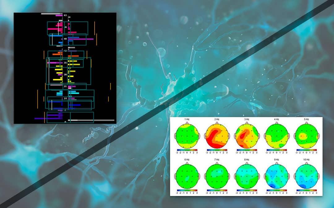 Neurofeedback Dynamique et Neurofeedback linéaire